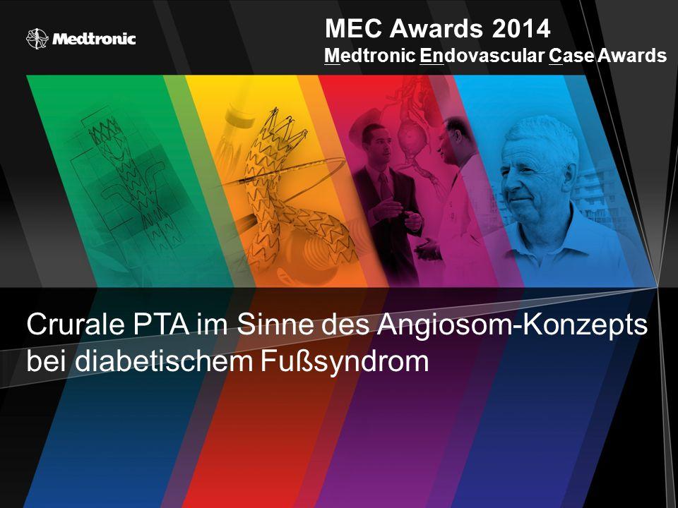 MEC Awards 2014 Medtronic Endovascular Case Awards Crurale PTA im Sinne des Angiosom-Konzepts bei diabetischem Fußsyndrom