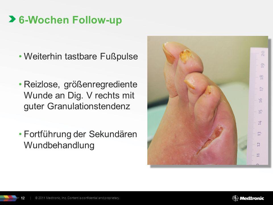 Weiterhin tastbare Fußpulse Reizlose, größenregrediente Wunde an Dig.