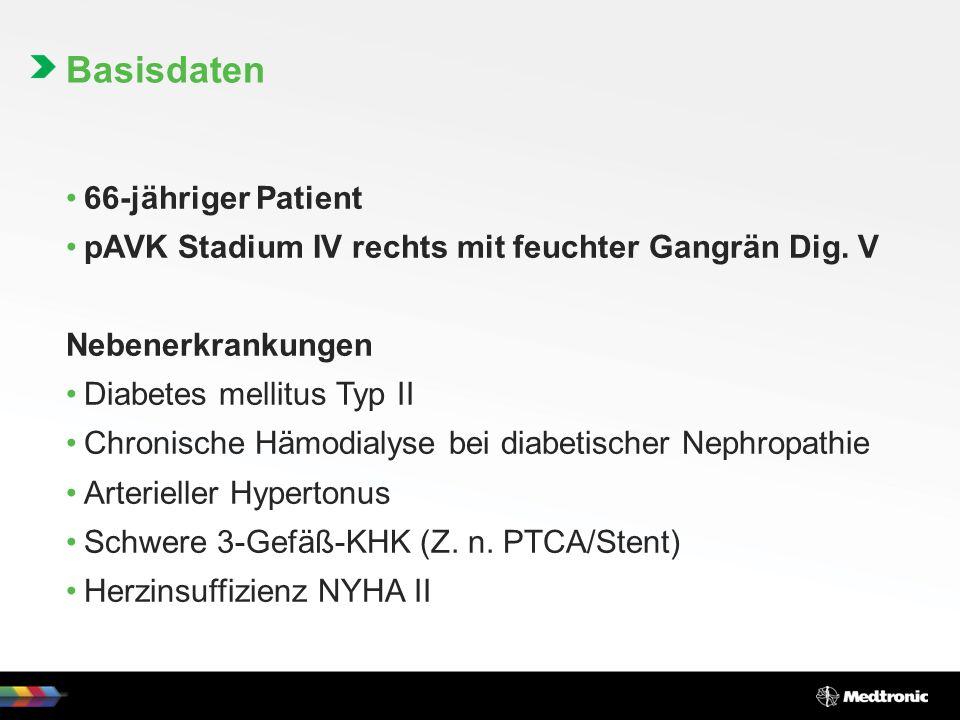 66-jähriger Patient pAVK Stadium IV rechts mit feuchter Gangrän Dig.