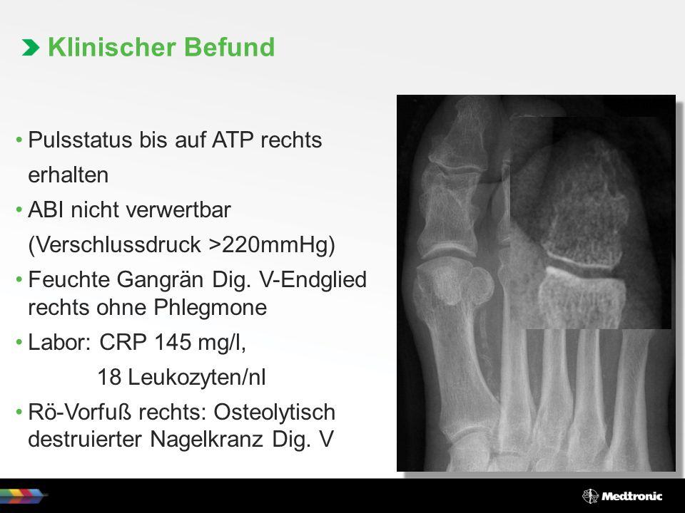 Pulsstatus bis auf ATP rechts erhalten ABI nicht verwertbar (Verschlussdruck >220mmHg) Feuchte Gangrän Dig.