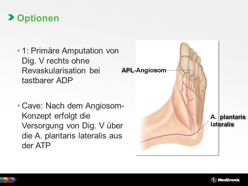 1: Primäre Amputation von Dig.