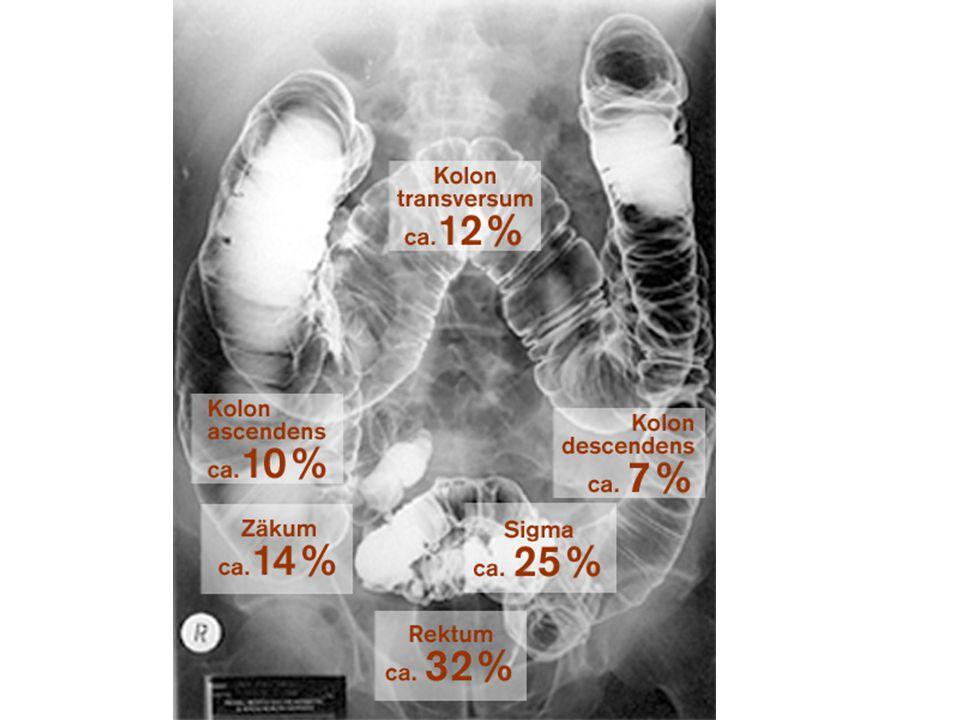 Basierend auf: Wiliams AR, Balasooriya DW, GUT 1982; Früherkennungskoloskopie des ZI / 2005 2% der Deutschen stirbt an Darmkrebs
