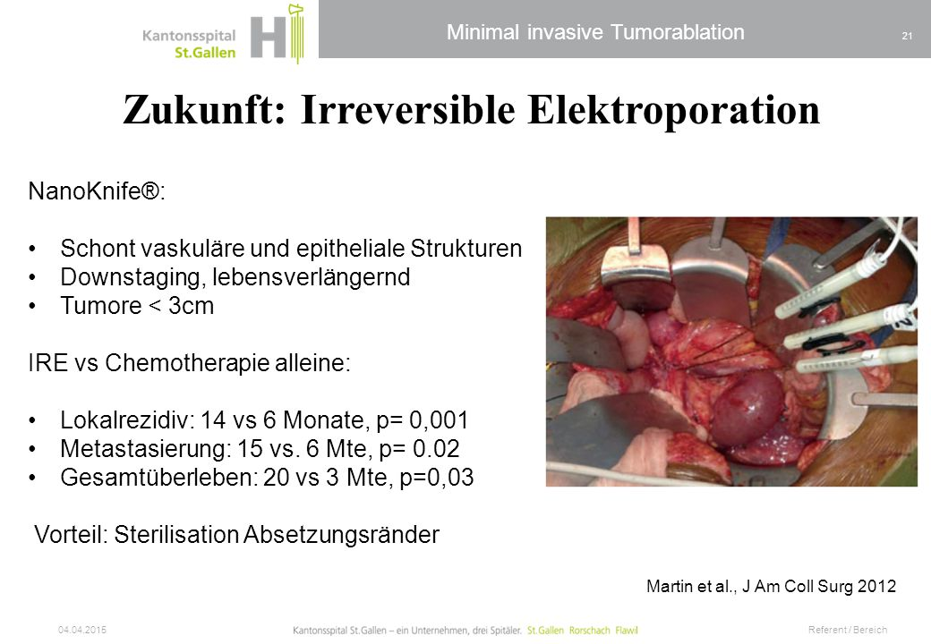 Minimal invasive Tumorablation 04.04.2015 Referent / Bereich 21 Martin et al., J Am Coll Surg 2012 Zukunft: Irreversible Elektroporation NanoKnife®: S