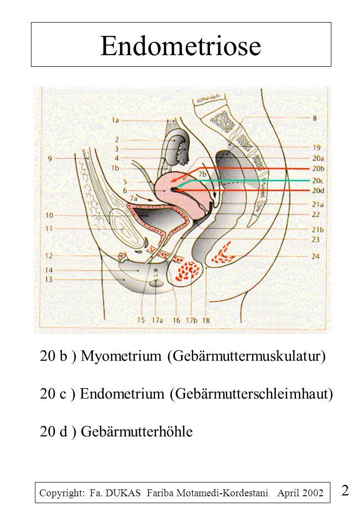 Endometriose Je nach Lokalisation kann man Endometriose unterteilen in 1.Overialendometriose 2.Tubenendometriose 3.Douglasendometriose ( retrozervikal Endometriose) 4.Endometriosis (Adenomyosis) uteri interna 5.Endometriose des unteres Genitaltraktes 6.Extragenitale Endometriose Copyright: Fa.