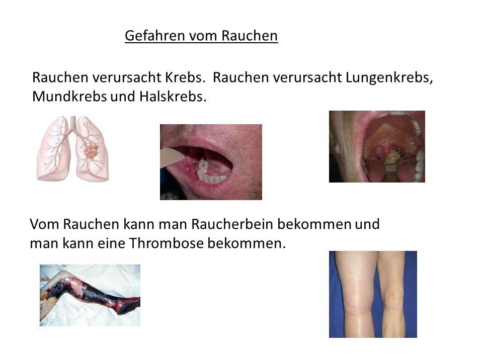 Gefahren vom Rauchen Rauchen verursacht Krebs. Rauchen verursacht Lungenkrebs, Mundkrebs und Halskrebs. Vom Rauchen kann man Raucherbein bekommen und