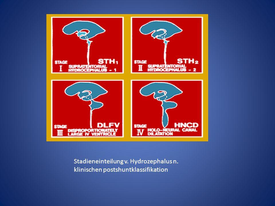Stadieneinteilung v. Hydrozephalus n. klinischen postshuntklassifikation