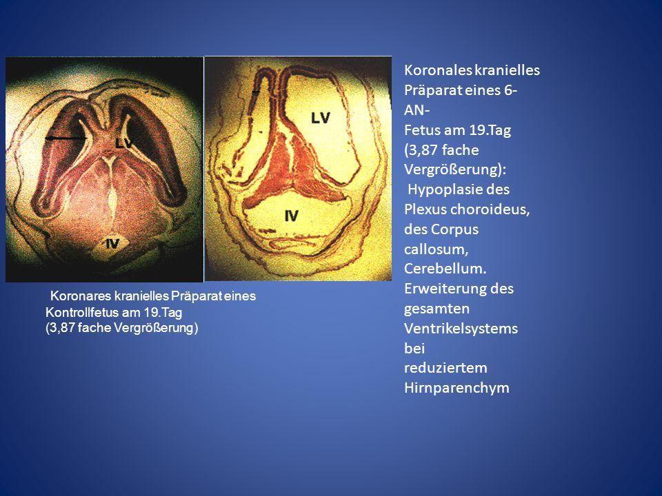 Koronares kranielles Präparat eines Kontrollfetus am 19.Tag (3,87 fache Vergrößerung) Koronales kranielles Präparat eines 6- AN- Fetus am 19.Tag (3,87