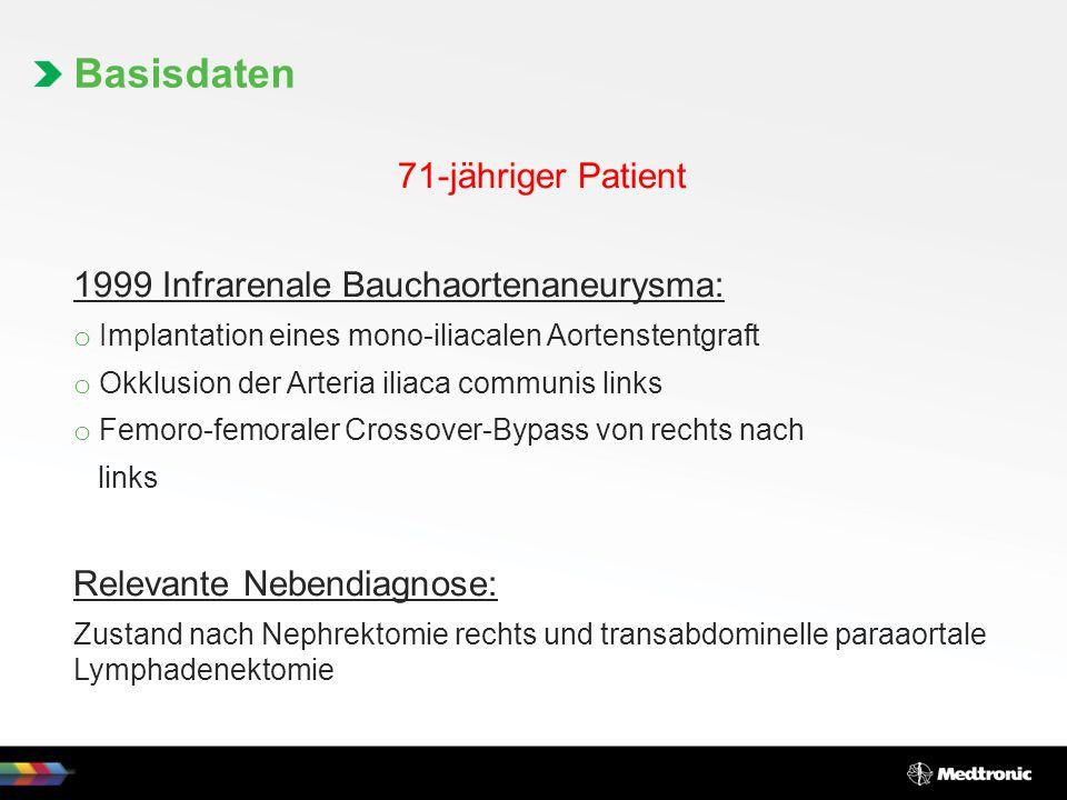 71-jähriger Patient 1999 Infrarenale Bauchaortenaneurysma: o Implantation eines mono-iliacalen Aortenstentgraft o Okklusion der Arteria iliaca communi