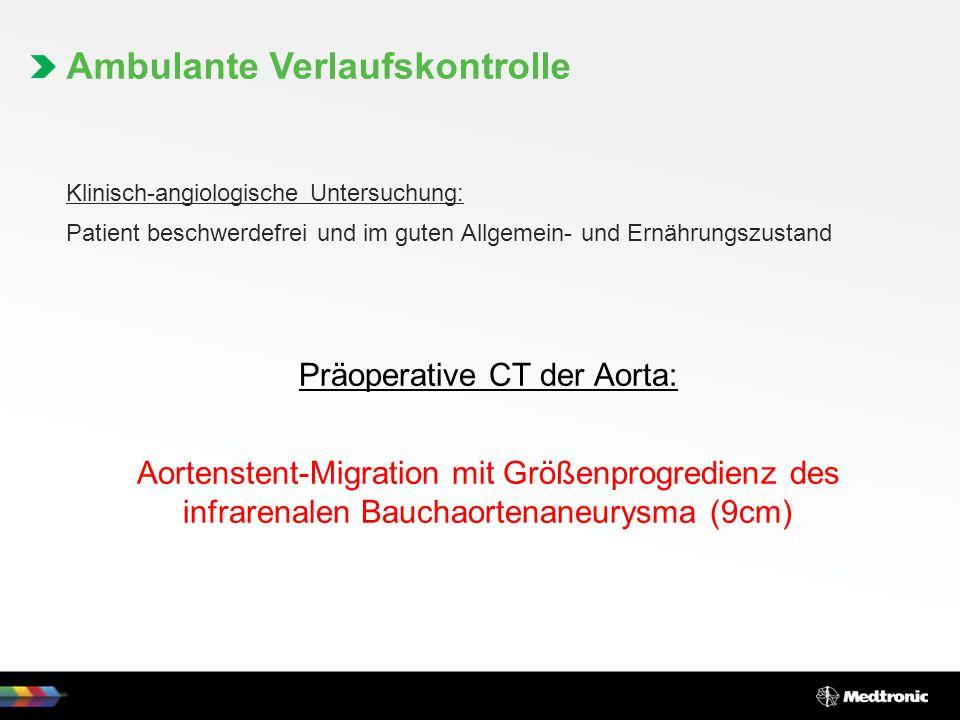 Klinisch-angiologische Untersuchung: Patient beschwerdefrei und im guten Allgemein- und Ernährungszustand Präoperative CT der Aorta: Aortenstent-Migra