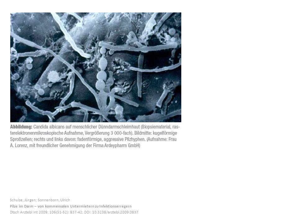 Schulze, Jürgen; Sonnenborn, Ulrich Pilze im Darm – von kommensalen Untermietern zu Infektionserregern Dtsch Arztebl Int 2009; 106(51-52): 837-42; DOI: 10.3238/arztebl.2009.0837