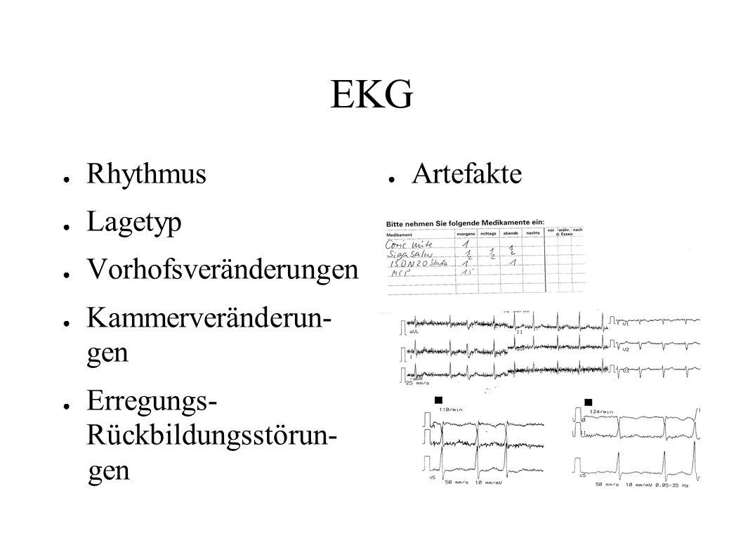 EKG ● Rhythmus ● Lagetyp ● Vorhofsveränderungen ● Kammerveränderun- gen ● Erregungs- Rückbildungsstörun- gen ● Artefakte