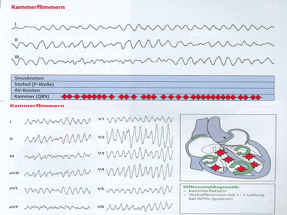 Defibrillation bei Kammerflimmern oder -flattern 3 Stöße zu je 360 Joule - Abstand zwischen den Defibrillationen 25 – 30 Sekunden Zwischen und nach den Defibrillationen Monitorbild kontrollieren
