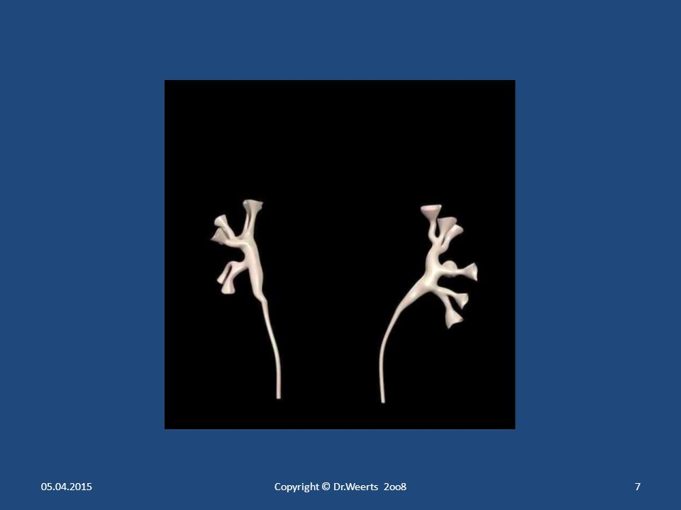 Die Autoregulation der Nierendurchblutung und der glomerulären Filtration Durchblutung beider Nieren = 20% des Herzminutenvolumens Durchblutung beider Nieren = 20% des Herzminutenvolumens = 1Liter / min = 1.500 Liter täglich Blutdruck (RR) in den Glomerulumschlingen und Durchblutung müssen konstant gehalten werden Blutdruck (RR) in den Glomerulumschlingen und Durchblutung müssen konstant gehalten werden =>Zu niedriger glomerulärer Filtrationsdruck  zu niedrige Urinproduktion  Nierenversagen Autoregulation der Nierendurchblutung und der Glomerulumschlingen erfolgt durch Autoregulation der Nierendurchblutung und der Glomerulumschlingen erfolgt durch Vas afferens und Vas efferens Vas afferens und Vas efferens Gefäßweite wird durch die glatte Muskulatur reguliert Gefäßweite wird durch die glatte Muskulatur reguliert Versagen der Autoregulation bei zu hohem RR (über 190 mm Hg) Versagen der Autoregulation bei zu hohem RR (über 190 mm Hg) Versagen auch bei zu niedrigem RR ( unter 70 mm Hg) Versagen auch bei zu niedrigem RR ( unter 70 mm Hg)  Akutes Nierenversagen  Oligurie/ Anurie 05.04.2015Copyright © Dr.Weerts 2oo847