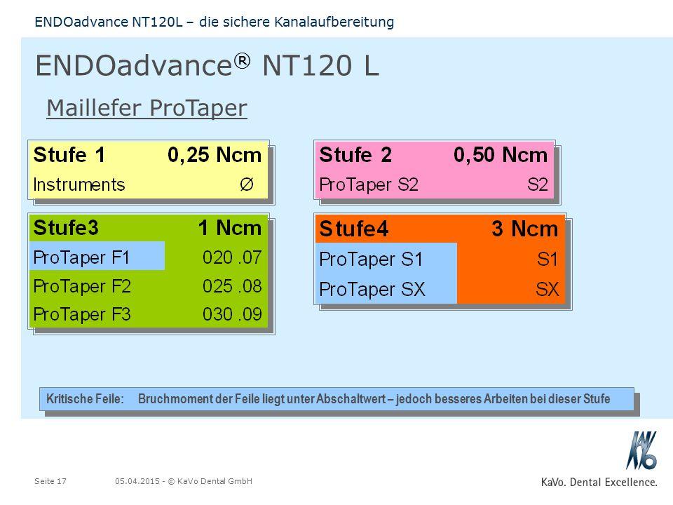 05.04.2015 - © KaVo Dental GmbHSeite 17 ENDOadvance NT120L – die sichere Kanalaufbereitung ENDOadvance ® NT120 L Kritische Feile: Bruchmoment der Feil