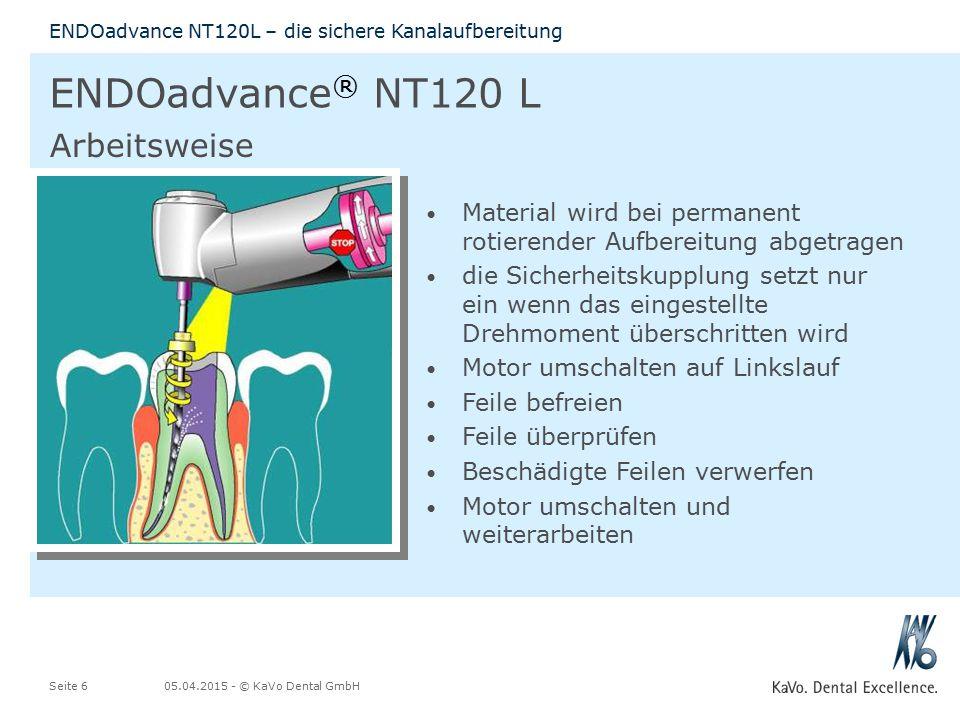 05.04.2015 - © KaVo Dental GmbHSeite 6 ENDOadvance NT120L – die sichere Kanalaufbereitung ENDOadvance ® NT120 L Arbeitsweise Material wird bei permane