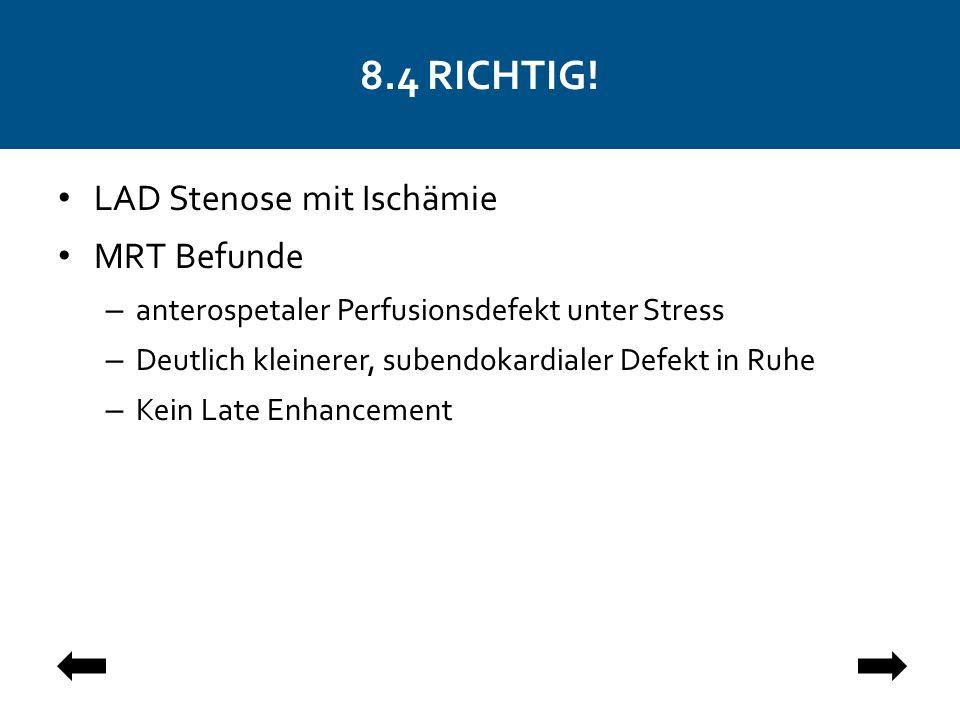 8.4 RICHTIG! LAD Stenose mit Ischämie MRT Befunde – anterospetaler Perfusionsdefekt unter Stress – Deutlich kleinerer, subendokardialer Defekt in Ruhe