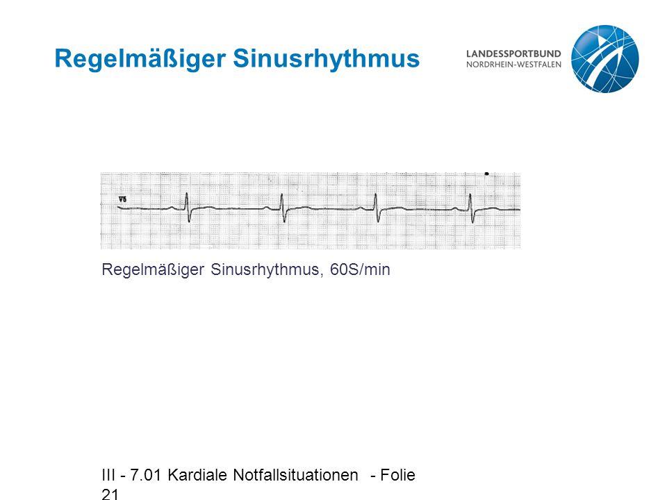 III - 7.01 Kardiale Notfallsituationen - Folie 21 Regelmäßiger Sinusrhythmus Regelmäßiger Sinusrhythmus, 60S/min