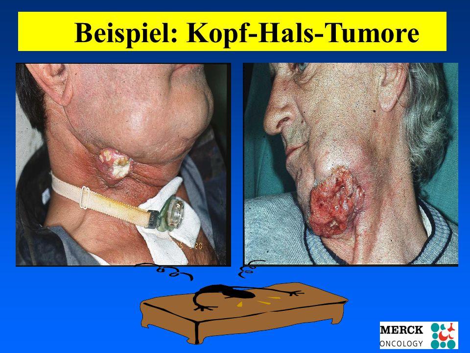 03.05.2001 17.00 Uhr s.t. Potsdam: 16.06.2001 GEHE Beispiel: Kopf-Hals-Tumore