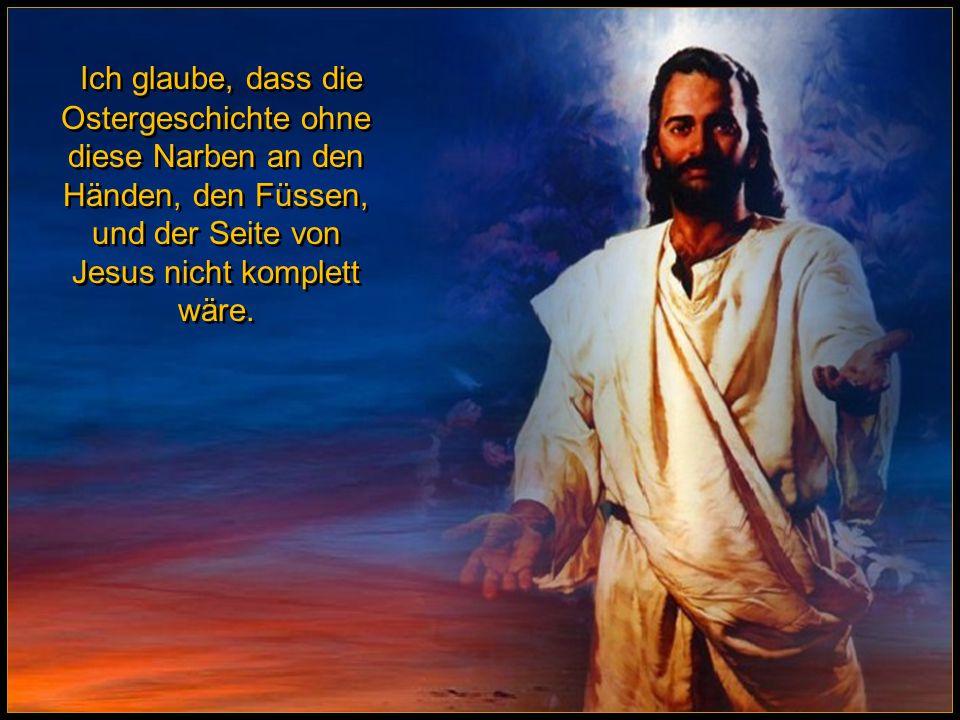 Ein Detail an der Auferstehungsgeschichte hat mich immer verwundert: Warum behielt Jesus die Narben Seiner Kreuzigung.