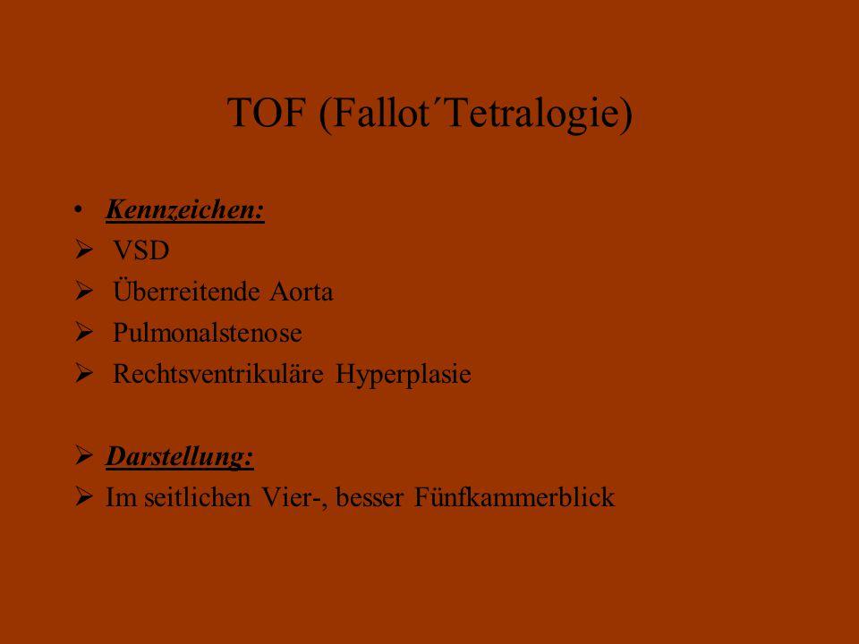 TOF (Fallot´Tetralogie) Kennzeichen:  VSD  Überreitende Aorta  Pulmonalstenose  Rechtsventrikuläre Hyperplasie  Darstellung:  Im seitlichen Vier-, besser Fünfkammerblick