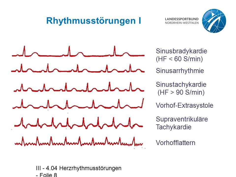 III - 4.04 Herzrhythmusstörungen - Folie 8 Rhythmusstörungen I Sinusbradykardie (HF < 60 S/min) Sinusarrhythmie Sinustachykardie (HF > 90 S/min) Vorhof-Extrasystole Supraventrikuläre Tachykardie Vorhofflattern