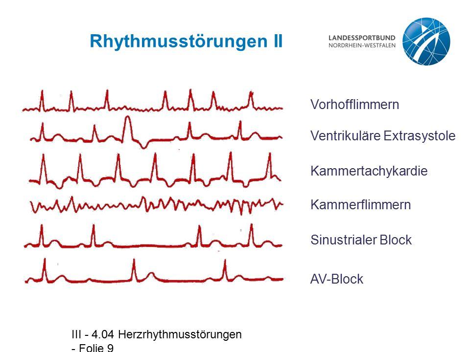 III - 4.04 Herzrhythmusstörungen - Folie 9 Rhythmusstörungen II Vorhofflimmern Ventrikuläre Extrasystole Kammertachykardie Kammerflimmern Sinustrialer Block AV-Block