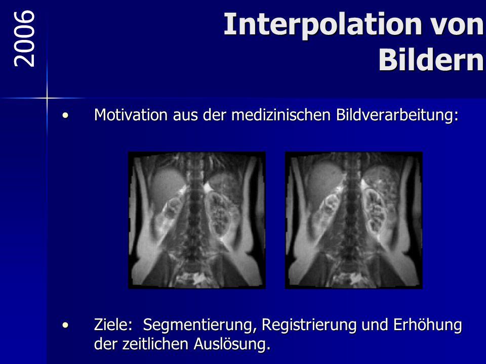 Interpolation von Bildern Motivation aus der medizinischen Bildverarbeitung:Motivation aus der medizinischen Bildverarbeitung: Ziele: Segmentierung, R