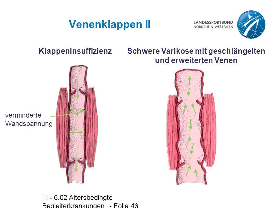 III - 6.02 Altersbedingte Begleiterkrankungen - Folie 46 Venenklappen II Klappeninsuffizienz verminderte Wandspannung Schwere Varikose mit geschlängel