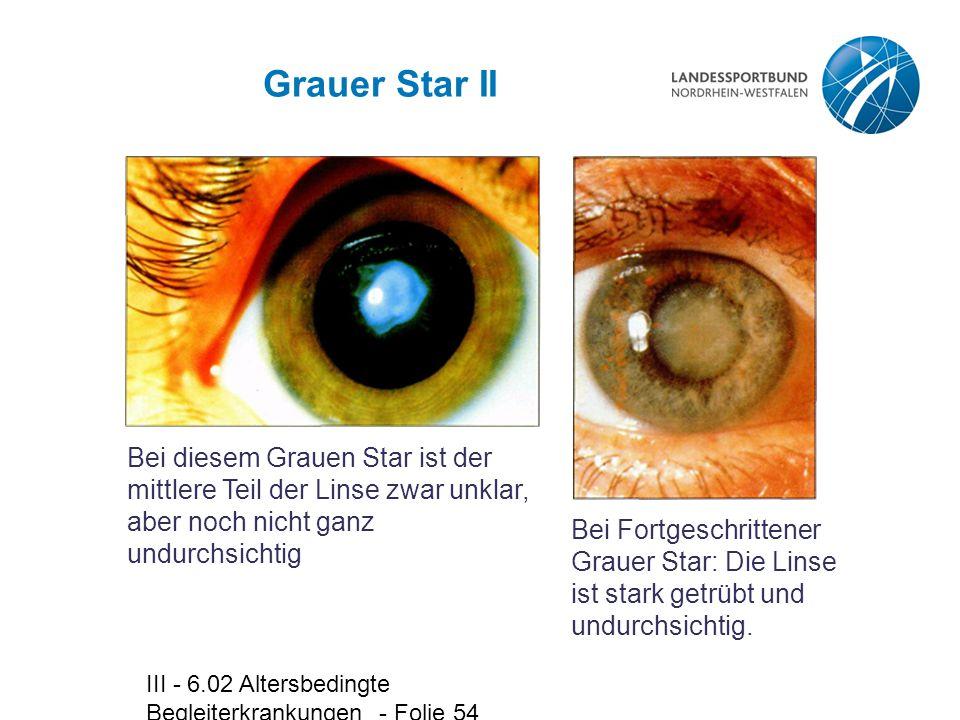 III - 6.02 Altersbedingte Begleiterkrankungen - Folie 54 Grauer Star II Bei diesem Grauen Star ist der mittlere Teil der Linse zwar unklar, aber noch