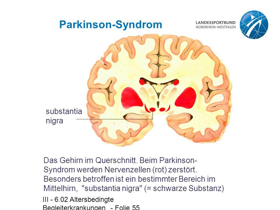 III - 6.02 Altersbedingte Begleiterkrankungen - Folie 55 Parkinson-Syndrom Das Gehirn im Querschnitt. Beim Parkinson- Syndrom werden Nervenzellen (rot