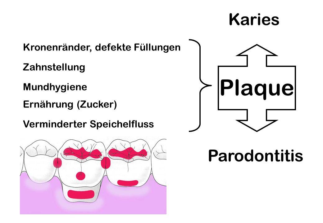 Plaque Karies Parodontitis Mundhygiene Ernährung (Zucker) Zahnstellung Kronenränder, defekte Füllungen Verminderter Speichelfluss