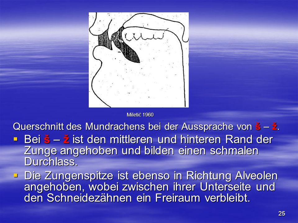 25 Querschnitt des Mundrachens bei der Aussprache von š – ž.  Bei š – ž ist den mittleren und hinteren Rand der Zunge angehoben und bilden einen schm