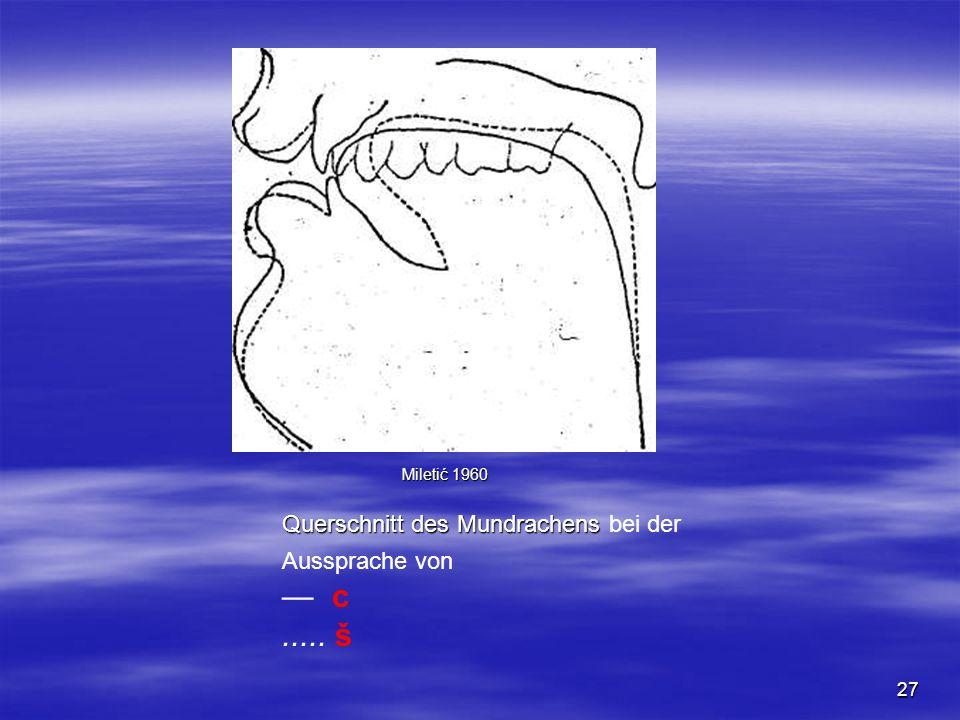 27 Querschnitt des Mundrachens Querschnitt des Mundrachens bei der Aussprache von — c..... š Miletić 1960