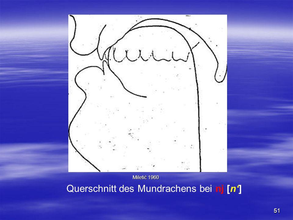51 Querschnitt des Mundrachens bei nj [n'] Miletić 1960