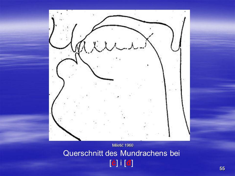 55 Querschnitt des Mundrachens bei [ć] i [đ] Miletić 1960