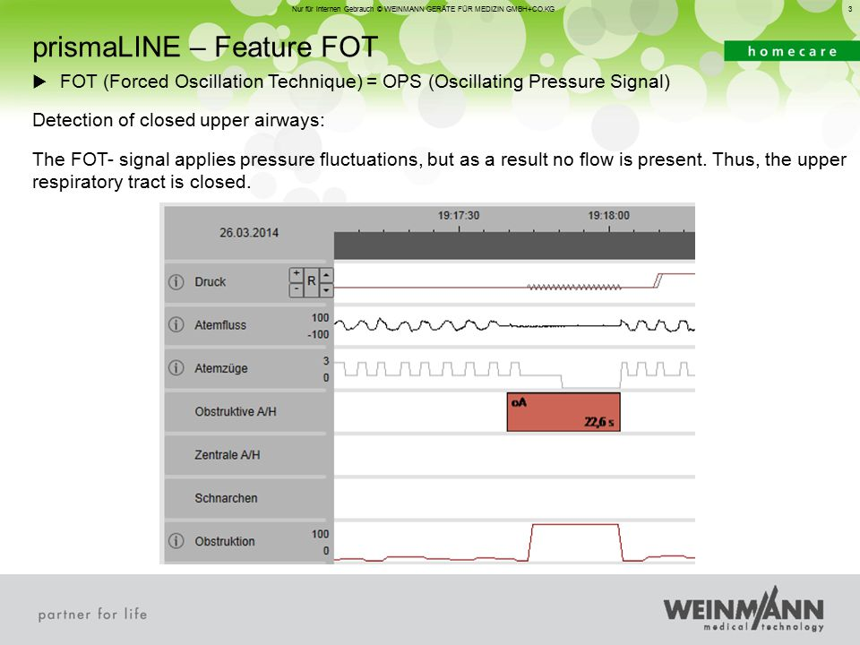 3 Nur für internen Gebrauch © WEINMANN GERÄTE FÜR MEDIZIN GMBH+CO.KG  FOT (Forced Oscillation Technique) = OPS (Oscillating Pressure Signal) Detection of closed upper airways: The FOT- signal applies pressure fluctuations, but as a result no flow is present.