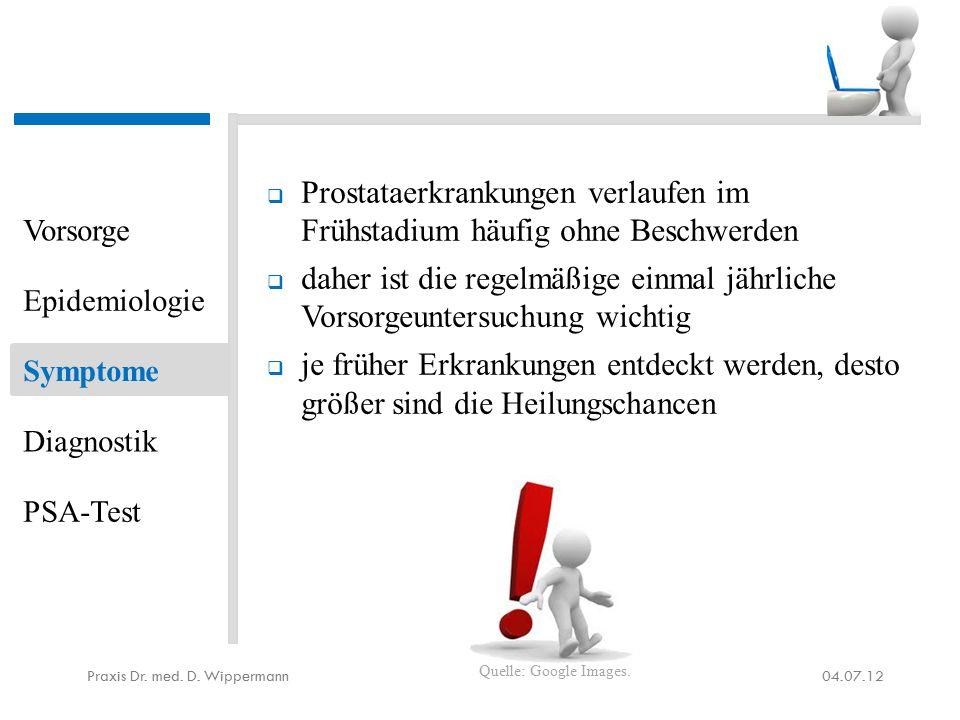 Positives am PSA-Test aus ärztlicher Sicht  Das Prostatakarzinom wird teilweise nur durch die PSA-Bestimmung entdeckt.