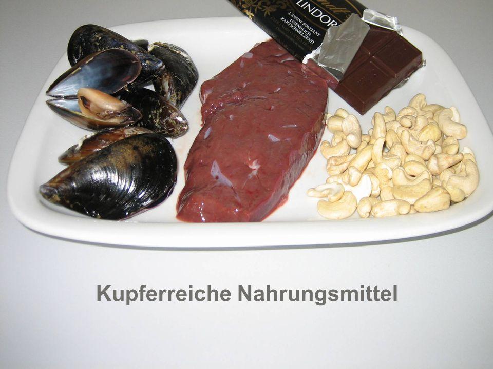Hirslanden Bern Klinik Beau-Site Klinik Permanence Salem-Spital Kupferreiche Nahrungsmittel