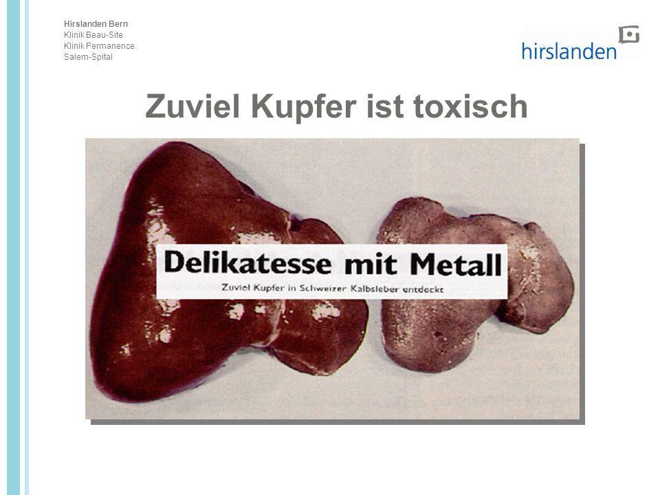 Hirslanden Bern Klinik Beau-Site Klinik Permanence Salem-Spital Zuviel Kupfer ist toxisch