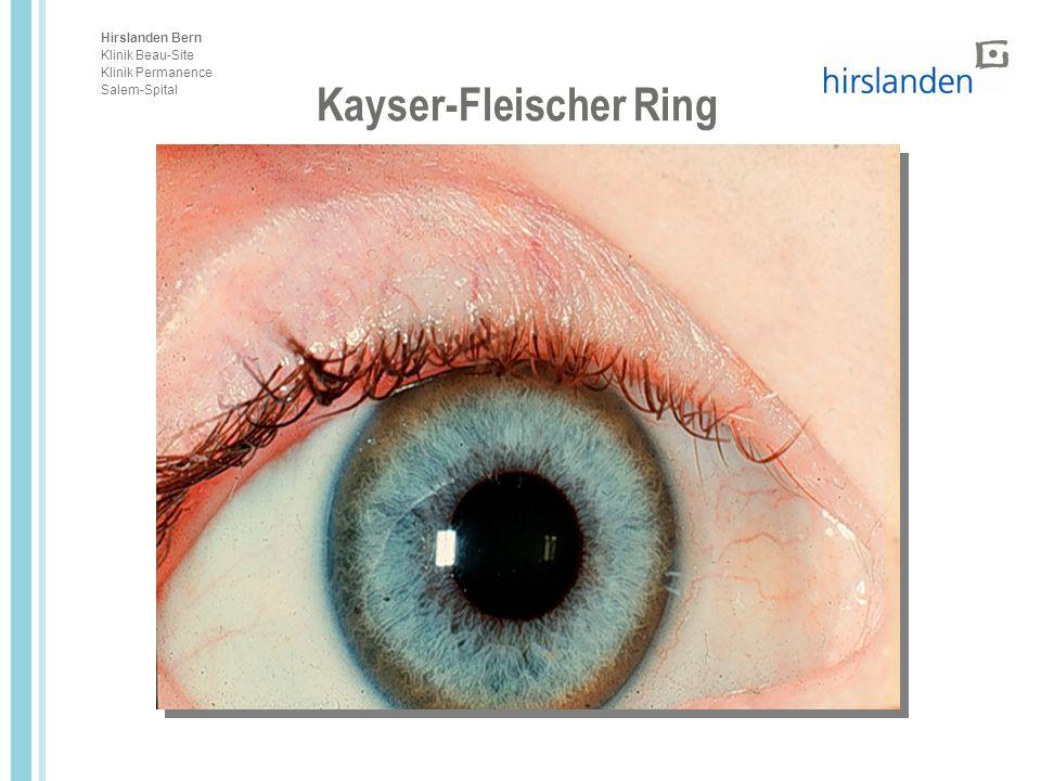 Hirslanden Bern Klinik Beau-Site Klinik Permanence Salem-Spital Kayser-Fleischer Ring