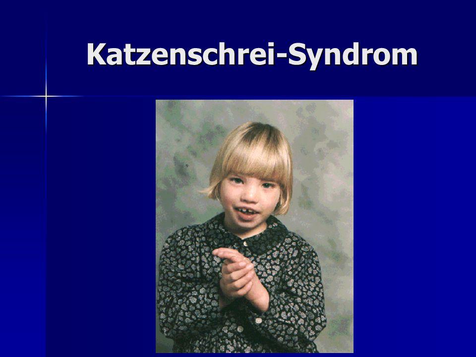 Katzenschrei-Syndrom