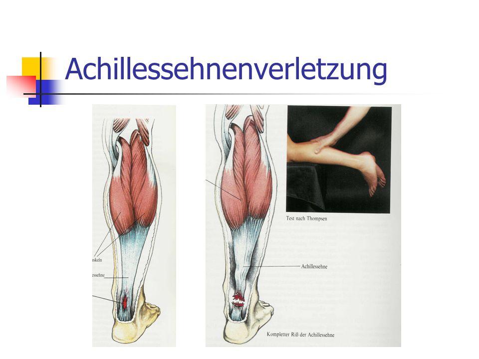 Achillessehnenverletzung