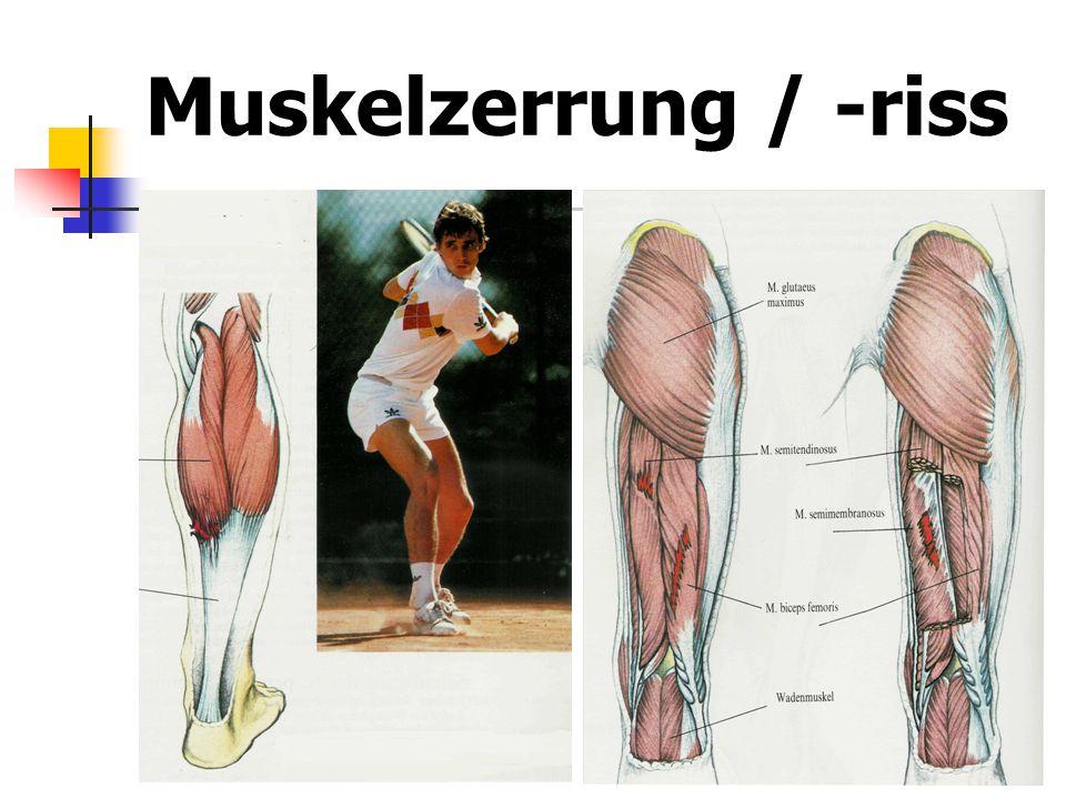Muskelzerrung / -riss