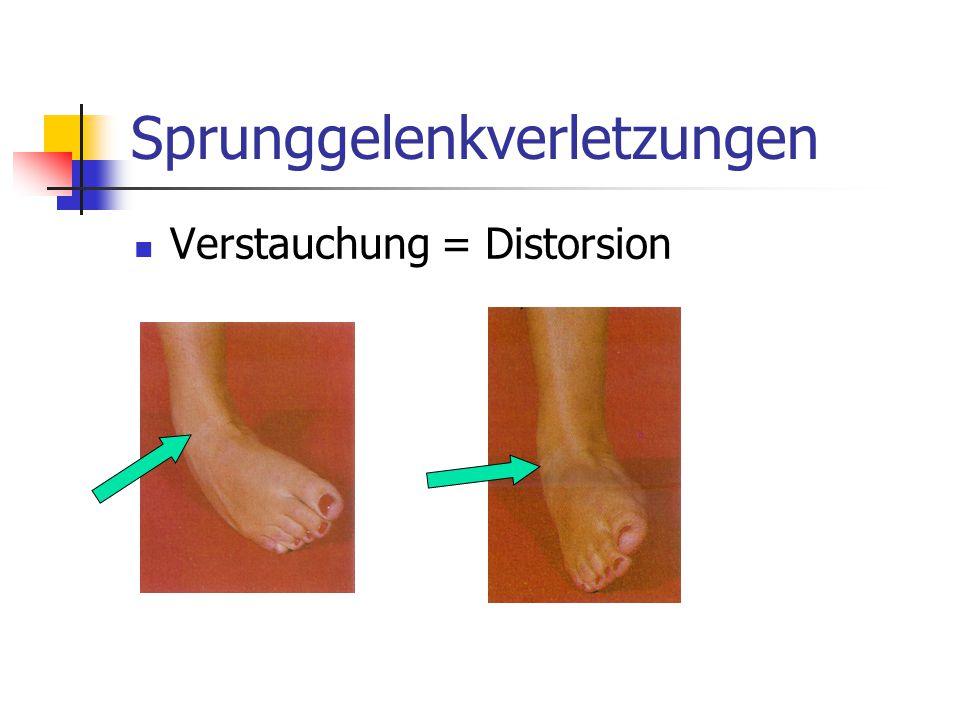 Sprunggelenkverletzungen Verstauchung = Distorsion
