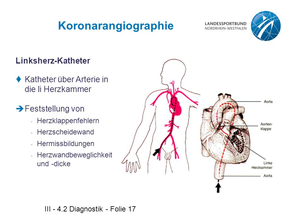 III - 4.2 Diagnostik - Folie 17 Koronarangiographie Linksherz-Katheter  Katheter über Arterie in die li Herzkammer  Feststellung von - Herzklappenfe