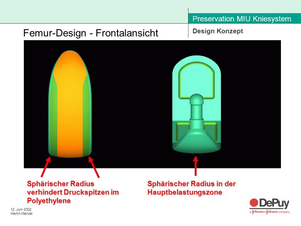 12. Juni 2002 Martin Menzel Preservation MIU Kniesystem Design Konzept Femur-Design - Frontalansicht Sphärischer Radius in der Hauptbelastungszone Sph