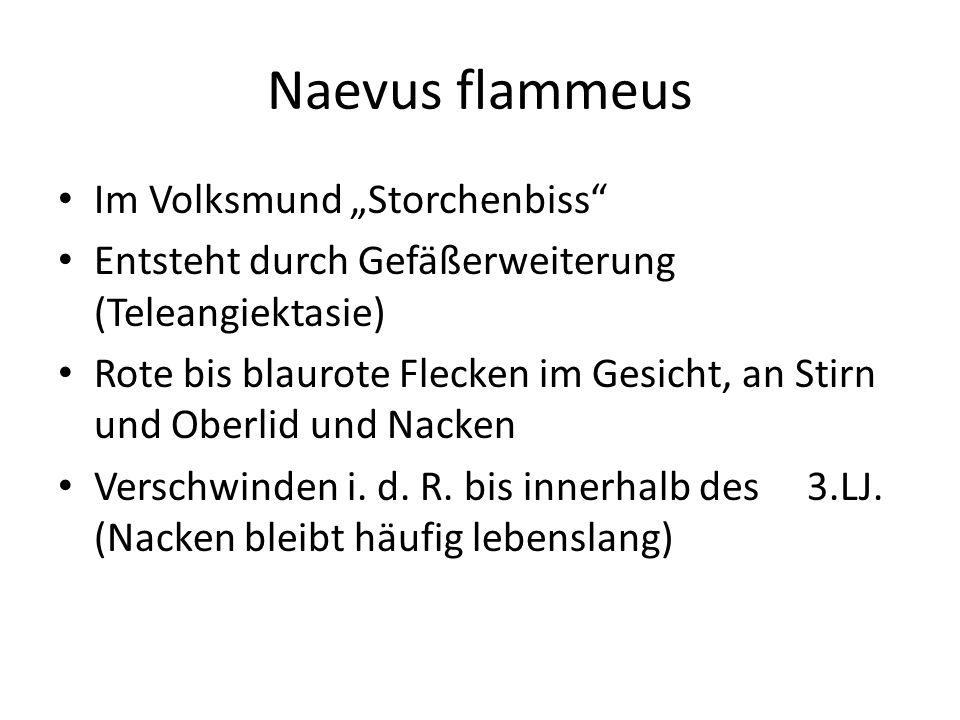 """Naevus flammeus Im Volksmund """"Storchenbiss"""" Entsteht durch Gefäßerweiterung (Teleangiektasie) Rote bis blaurote Flecken im Gesicht, an Stirn und Oberl"""