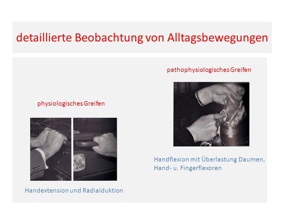 detaillierte Beobachtung von Alltagsbewegungen physiologisches Greifen Handextension und Radialduktion pathophysiologisches Greifen Handflexion mit Überlastung Daumen, Hand- u.