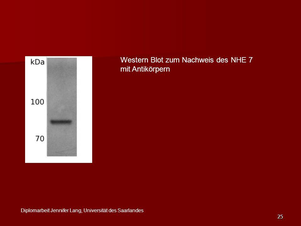 25 Western Blot zum Nachweis des NHE 7 mit Antikörpern Diplomarbeit Jennifer Lang, Universität des Saarlandes