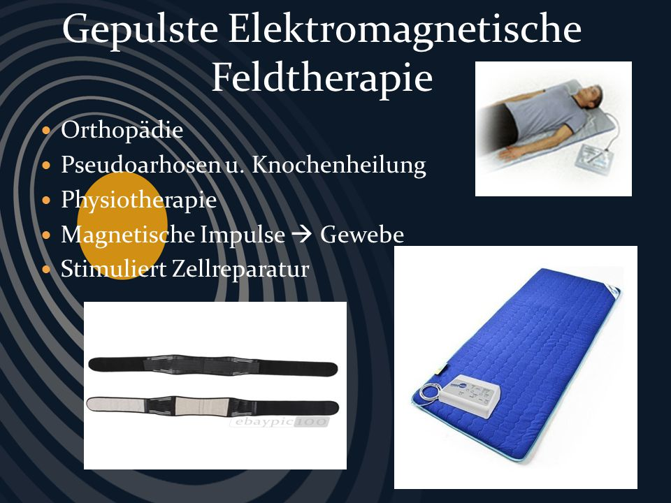 Hochfrequenzimpulse Entladung auf Haut d´Arsonvalisatin (Zeileis- Methode) Reizung der Akupunkturpunkte Aktivierung der Muskulatur Linderung von Schmerzen